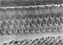 Normal organ of Corti