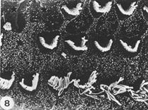 Kanamycin damage