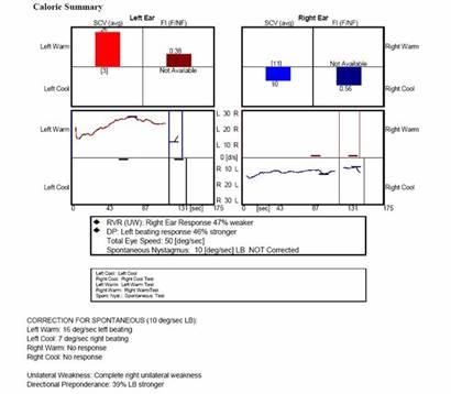 http://www.dizziness-and-balance.com/disorders/unilat/images/VN%20case/Caloric.jpg