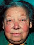 http://medmedicine.it/sito/wp-content/uploads/2013/05/Ipotiroidismo-04-pre-228x300.png