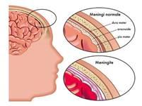 http://www.medicitalia.it/public/uploadedfiles/minforma/meningite.jpg