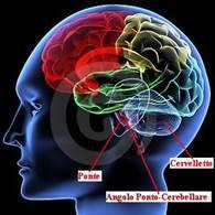 http://www.docvadis.it/fabiocolaboni/document-content/fabiocolaboni/neurinoma_del_nervo_acustico/fr/data/1297598085337Original.jpg