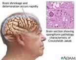 http://malattiaclinica.com/wp-content/uploads/2013/07/Creutzfeldt-Jakob-disease.jpg