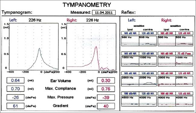 Figura 2: Tympanometry- bilaterale