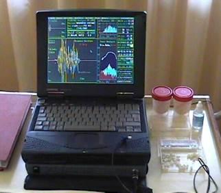 http://www.oae.it/www.oae.it/screening/images/Macchina_mantova.jpg