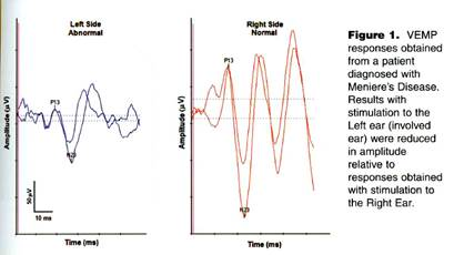 http://faculty.ucmo.edu/dejongeclasses/Hearing_Measurement/VEMP2.jpg
