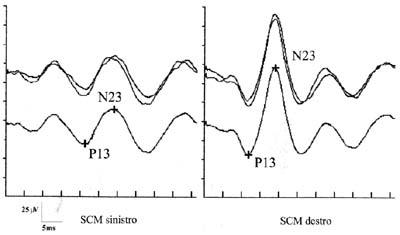 http://www.functionalneurology.com/materiale_cic/23_XVI_4/105_vestibular%20evoked/2_Versino.jpg