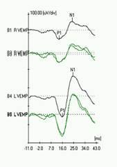http://www.dizziness-and-balance.com/testing/images/VEMP-SCD-L.jpg