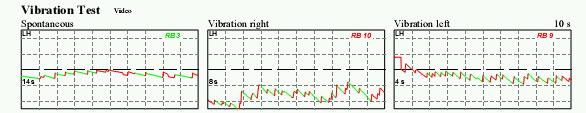 http://www.dizziness-and-balance.com/practice/images/vibration-mjf.jpg