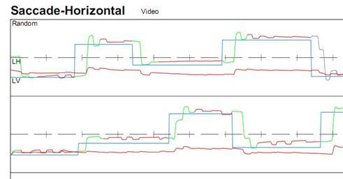 http://www.dizziness-and-balance.com/practice/images/oculomotor/saccades/cerebellar%20(bg)%20saccades.jpg