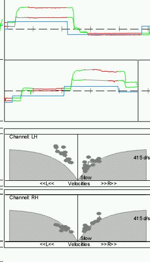 http://www.dizziness-and-balance.com/practice/images/oculomotor/errors/calibration-error-INO.jpg