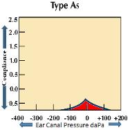Tympanogram Type As
