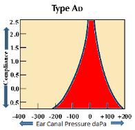 Tympanogram Type Ad